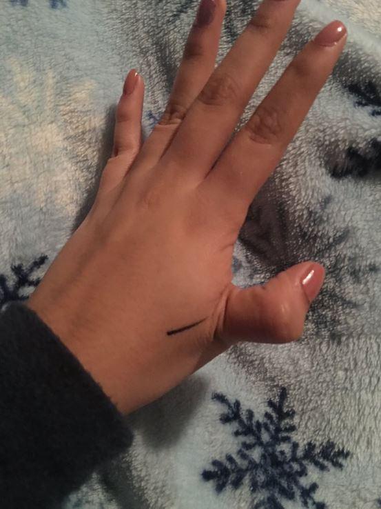 dislocated thumb