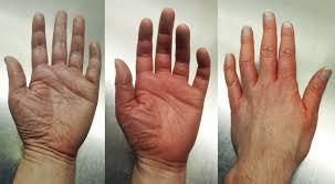 left hand pain icd 10